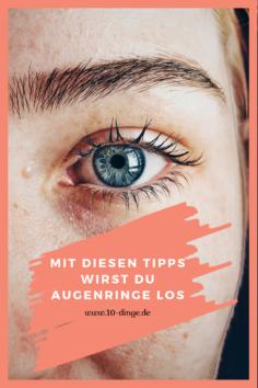 Mit diesen Tipps wirst Du Augenringe los
