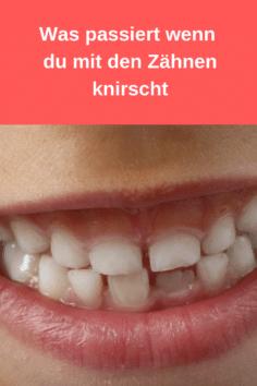 5 Gründe für Zähne knirschen